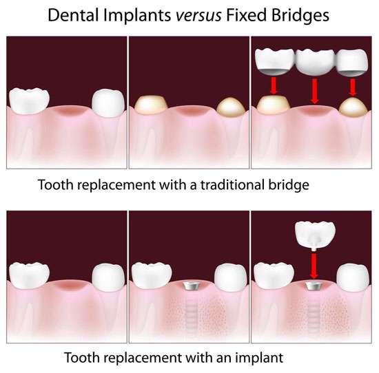 dental implants vs bridge MD