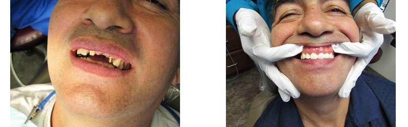 mini implants Rockville MD