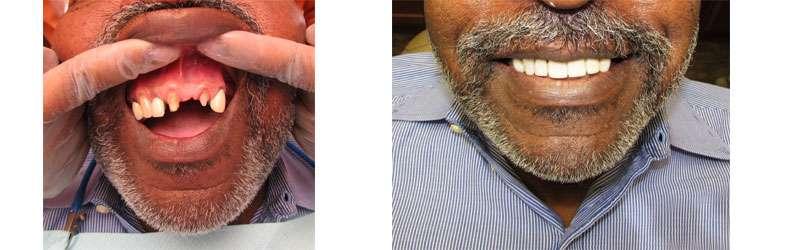 dental implants Rockville MD